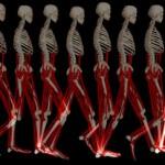 Movement Disorders اختلالات حرکتی